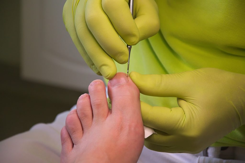foot care 3557103 1920